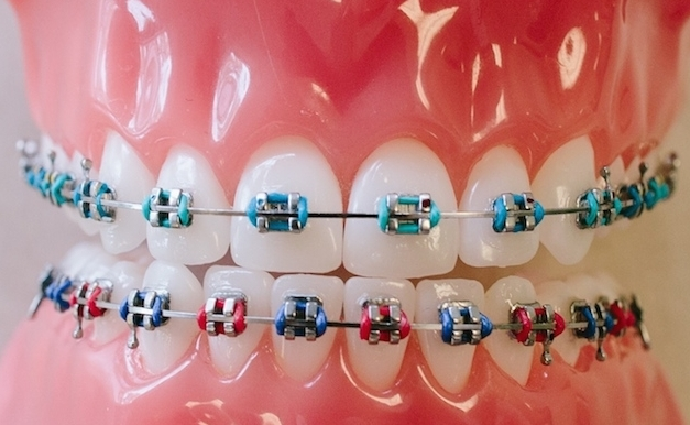 Using Your Dental Braces The Easy Way